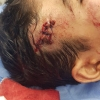 عملية جراحية لمعالجة كسر وايقاف نزيف في الدماغ لطفل ذي13 عاما