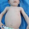 مركز التأهيل التغذوي في مستشفى الزهراء يجدد الامل بالحياة لطفلة ذات اربعة اشهر